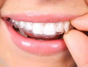 Clear Aligner Treatment